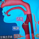 ワールドビジネスサテライト、下咽頭がんの最新治療、ボイスプロテーゼとは?